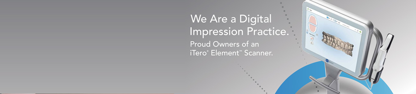 itero-scanner